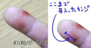 右手の人差し指